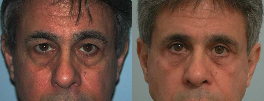 eyelid surgery in atlanta ga
