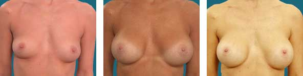 alpharetta breast surgeon