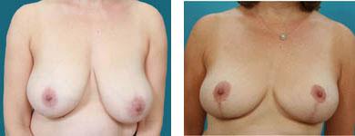 breast surgeon in atlanta georgia