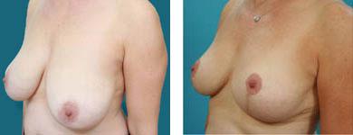 l franklyn elloitt photos of breast surgery