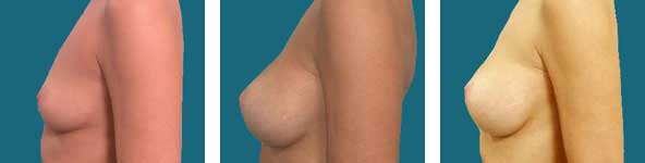 atlanta breast surgery results