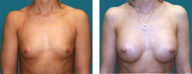 breast enhancement