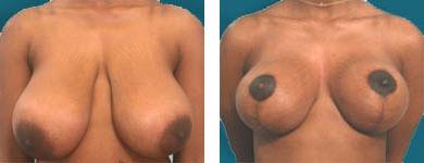 elliott patient cosmetic surgery