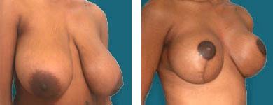 atlanta breast surgery