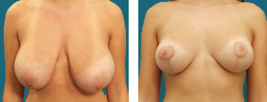 elliott atlanta plastic surgery