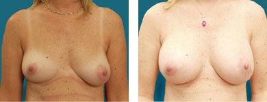 breast surgeon alpharetta