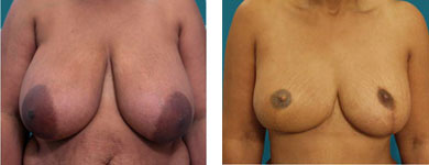 atlanta nipple reconstruction