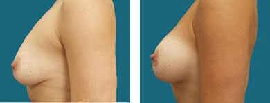 atlanta breast enhancement surgeon