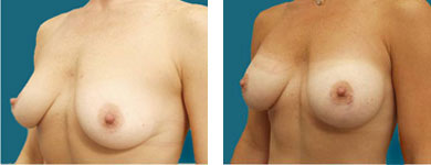 results of breast enhancement