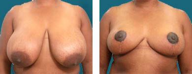 mammaplasty