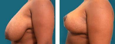 elliott atlanta plastic surgeon