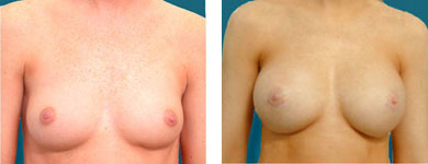 breast aug alpharetta
