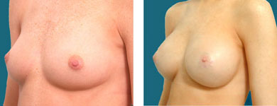 phots of breast enhancement