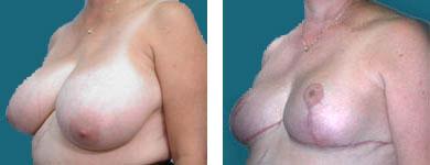 fraklyn elliott breast reduction surgeon