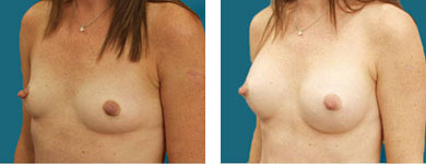 breast procedure in atlanta
