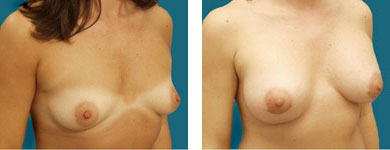 patient breast photos