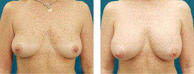 breast enhancement pictures