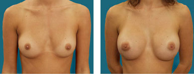 atlanta plastic surgeon breast photos