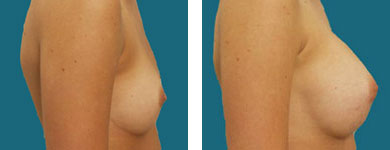 frank elliott breast augmentation pictures