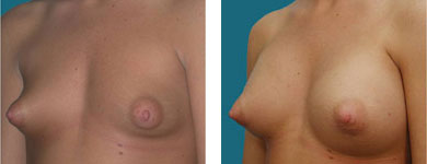 cosmetic surgery photos in alpharetta
