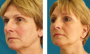 dr elliott facelift patient