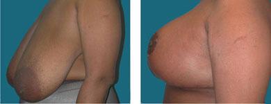 elliott breast reduction patient