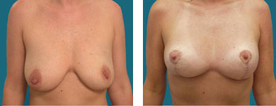 franklyn elliott md breast lift photos