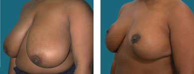 atlanta breast reduction surgeon