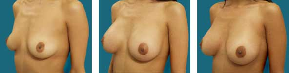 dr franklyn elliott breast surgery patient