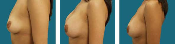photots of breast surgery results
