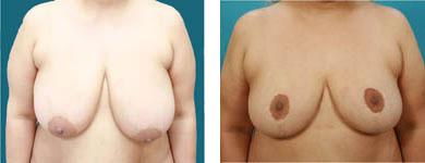 mammaplasty cosmetic surgery