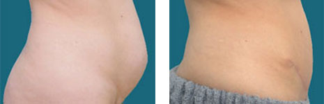dr elliott abdominoplasty procedure