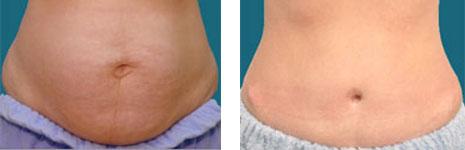 alpharetta abdominoplasty surgeon