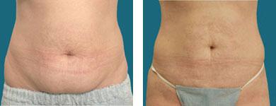 l franklyn elliott liposuction