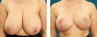 breast plastic surgery procedures