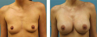 breast augmentation atlanta ga
