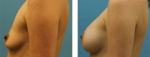 breast implants atlanta ga