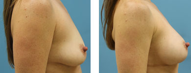 silicone breast implants atlanta