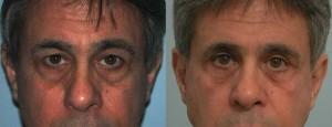 eyelid surgery in alpharetta cumming ga