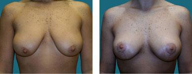 dr elliott breast surgeon