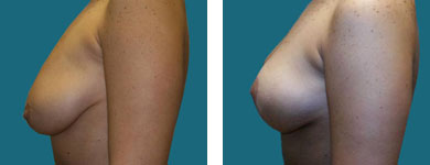 alpharetta breast surgeon results