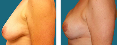 breast implants and breast reconstruction