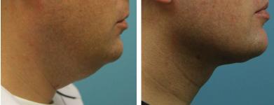 neck-lift-liposuction-atlanta-alpharetta-ga-01