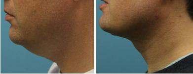neck-lift-liposuction-atlanta-alpharetta-ga-02
