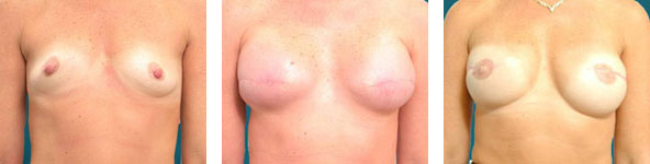 dr elliott breast reconstruction patient