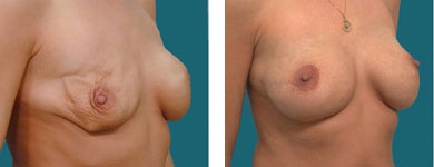 atlanta and alpharetta breast surgeon