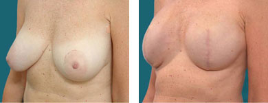 l franklyn elliott md breast reconstruction surgeon