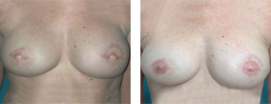 breast reconstruction in atlanta and alpharetta