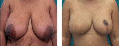 breast reconstruction dr elliott