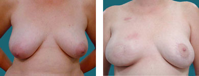 breast reconstruction surgery techniques